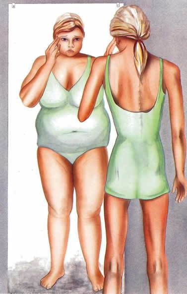 the negative effects of bulimia nervosa Bulimia nervosa is a serious eating disorder that can have severe long-term  effects on both physical and mental health learn more about the long-term  effects.